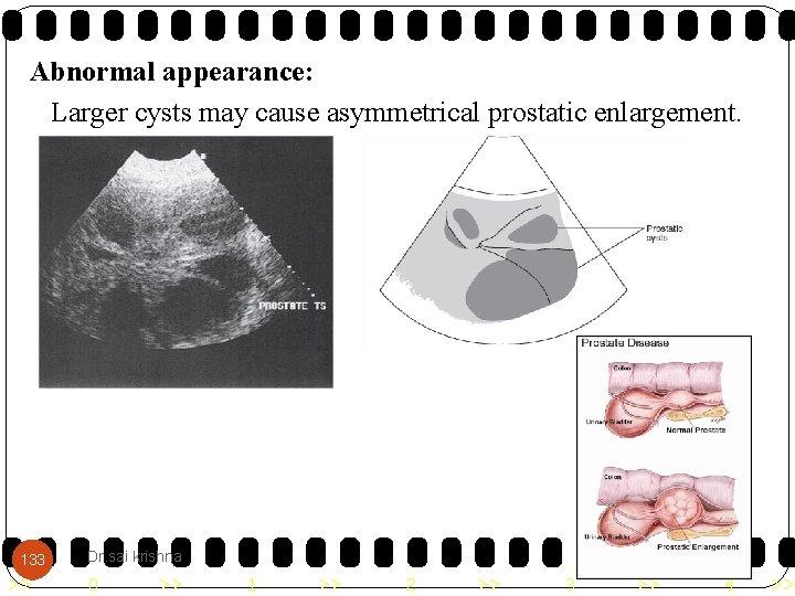 asymmetrical prostate causes