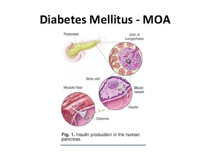 Diabetes Mellitus - MOA