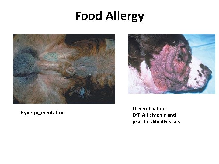 Food Allergy Hyperpigmentation Lichenification: Dff: All chronic and pruritic skin diseases