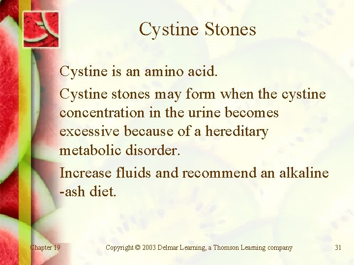 Cystine Stones Cystine is an amino acid. Cystine stones may form when the cystine