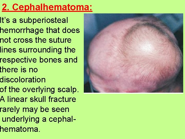 2. Cephalhematoma: It's a subperiosteal hemorrhage that does not cross the suture lines surrounding