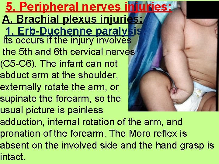 5. Peripheral nerves injuries: A. Brachial plexus injuries: 1. Erb-Duchenne paralysis: Its occurs if