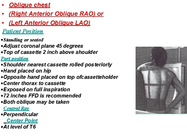 • Oblique chest • (Right Anterior Oblique RAO) or • (Left Anterior Oblique