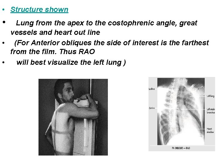 • Structure shown • Lung from the apex to the costophrenic angle, great