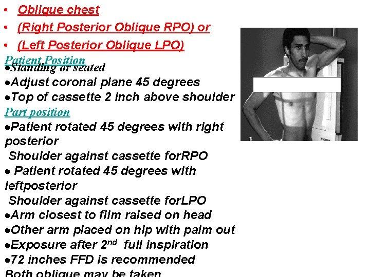 • Oblique chest • (Right Posterior Oblique RPO) or • (Left Posterior Oblique