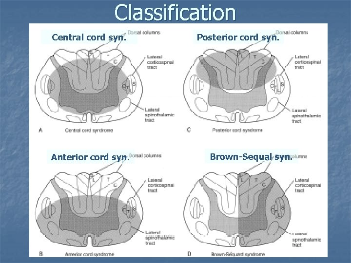 Classification Central cord syn. Anterior cord syn. Posterior cord syn. Brown-Sequal syn.