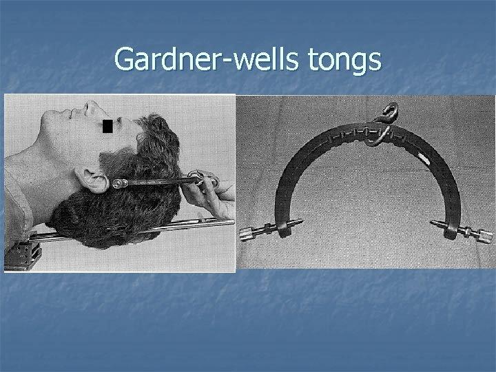 Gardner-wells tongs
