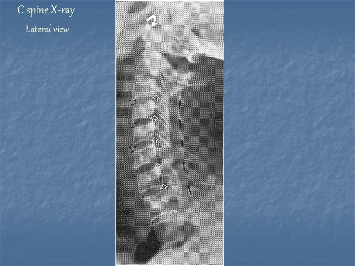 C spine X-ray Lateral view