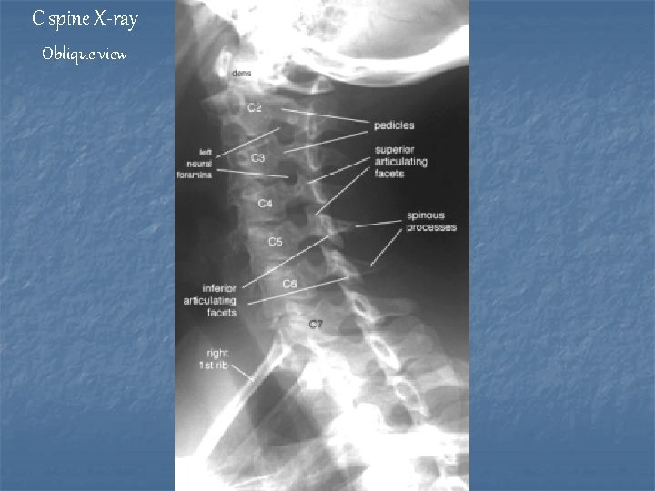 C spine X-ray Oblique view