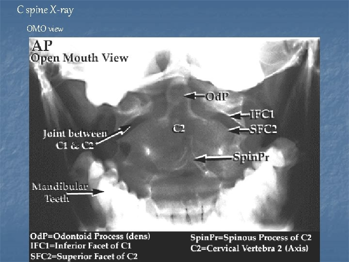 C spine X-ray OMO view
