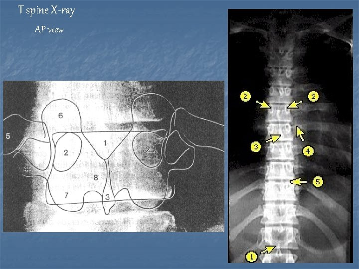 T spine X-ray AP view