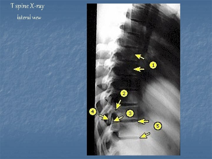 T spine X-ray lateral view