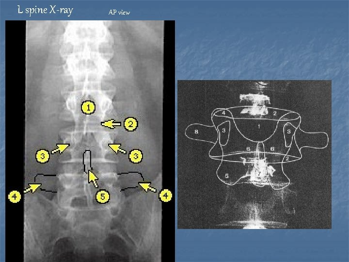 L spine X-ray AP view