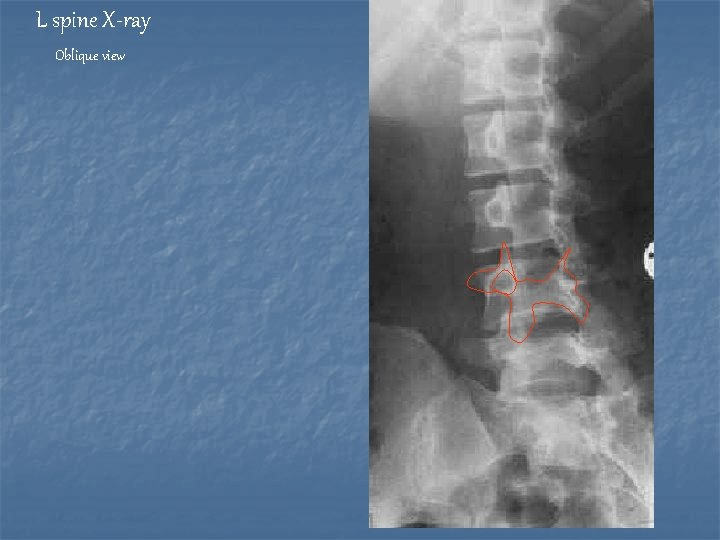 L spine X-ray Oblique view