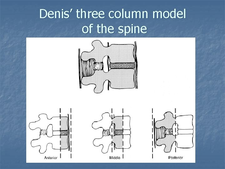 Denis' three column model of the spine