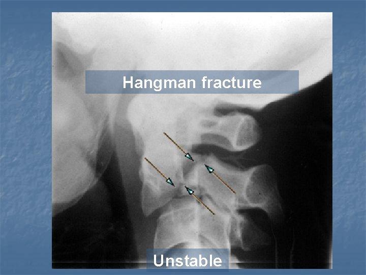 Hangman fracture Unstable