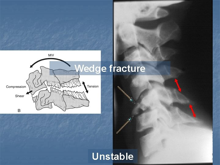 Wedge fracture Unstable