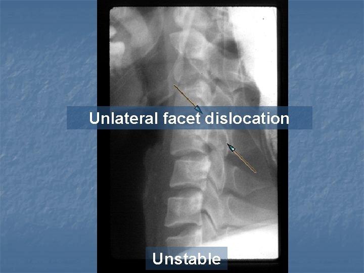 Unlateral facet dislocation Unstable