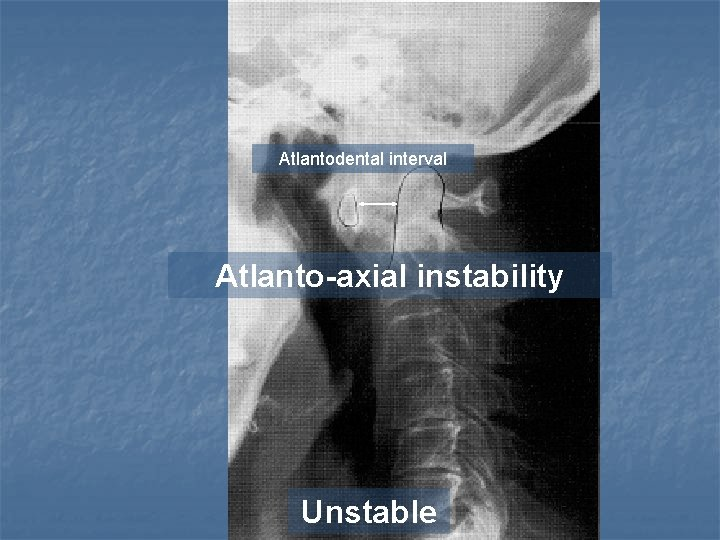 Atlantodental interval Atlanto-axial instability Unstable