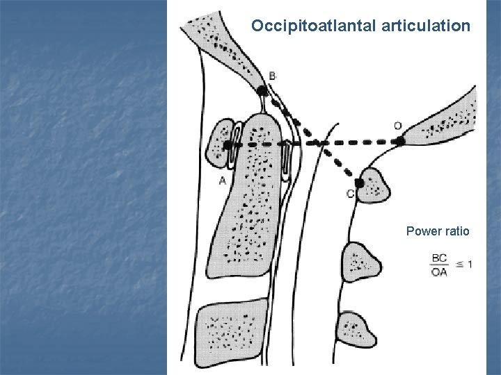 Occipitoatlantal articulation Power ratio