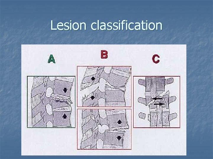 Lesion classification