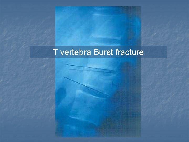 T vertebra Burst fracture