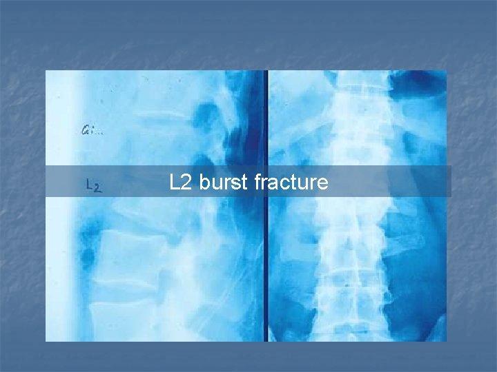 L 2 burst fracture