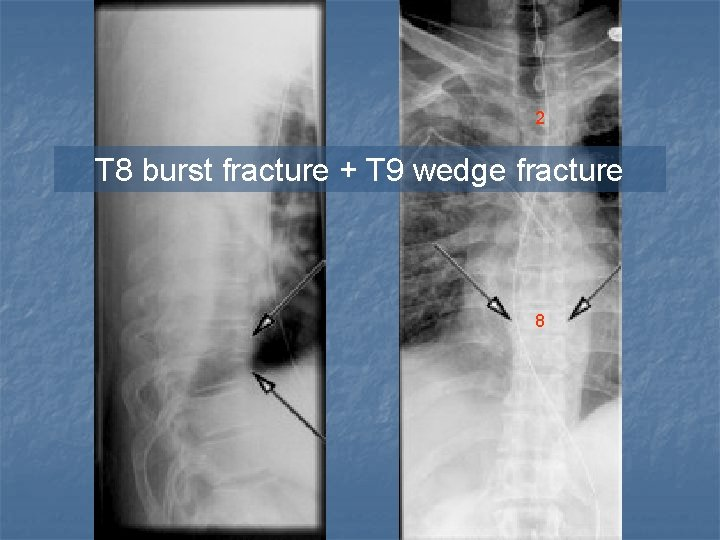 2 T 8 burst fracture + T 9 wedge fracture 8