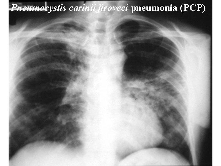 Pneumocystis carinii jiroveci pneumonia (PCP) Pneumocystis carinii jiroveci pneumonia
