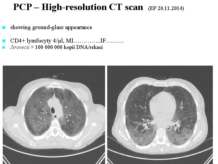 PCP – High-resolution CT scan (EP 20. 11. 2014) n showing ground-glass appearance. CT