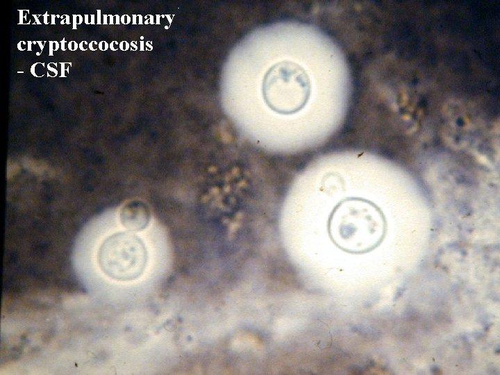 Extrapulmonary cryptoccocosis - CSF