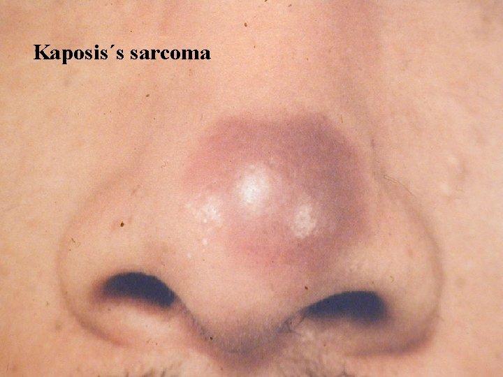 Kaposis´s sarcoma