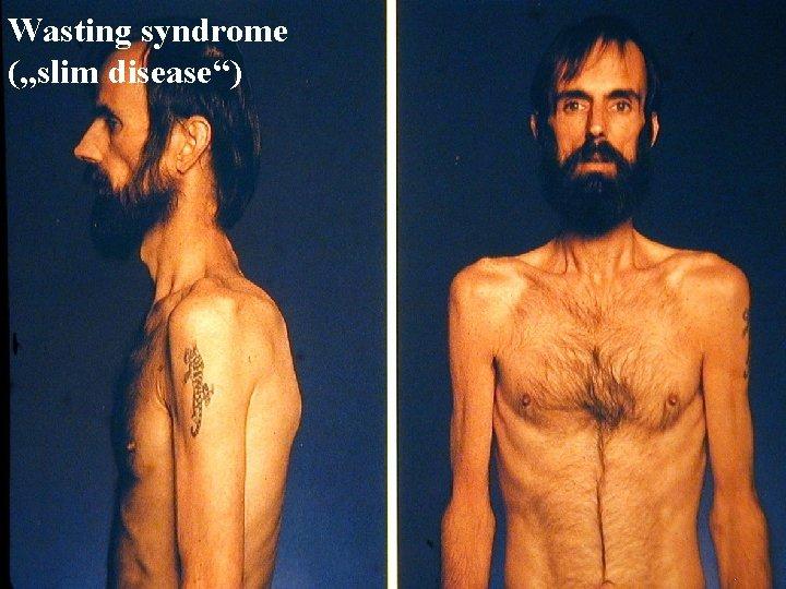 "Wasting syndrome (""slim disease"")"