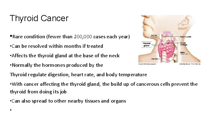 Thyroid Cancer • Rare condition (fewer than 200, 000 cases each year) • Can