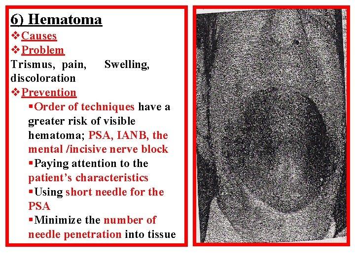 6) Hematoma v. Causes v. Problem Trismus, pain, Swelling, discoloration v. Prevention §Order of