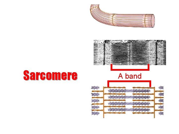 Sarcomere A band