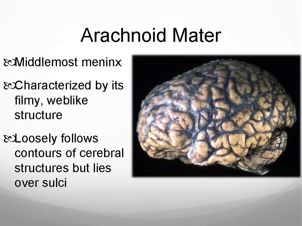 Arachnoid Mater Middlemost meninx Characterized by its filmy, weblike structure Loosely follows contours of