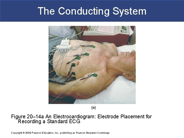 The Conducting System Figure 20– 14 a An Electrocardiogram: Electrode Placement for Recording a