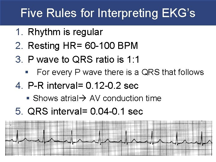 Five Rules for Interpreting EKG's 1. Rhythm is regular 2. Resting HR= 60 -100