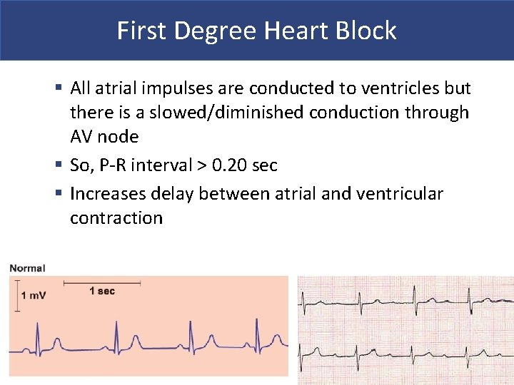 First Degree Heart Block § All atrial impulses are conducted to ventricles but there