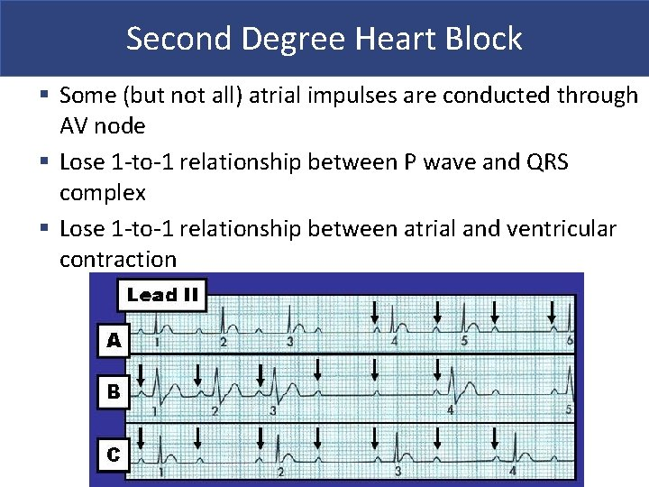 Second Degree Heart Block § Some (but not all) atrial impulses are conducted through