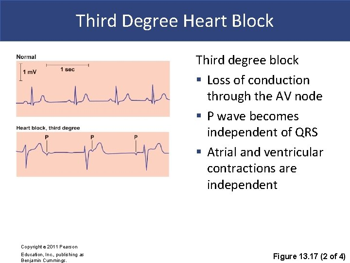 Third Degree Heart Block Third degree block § Loss of conduction through the AV