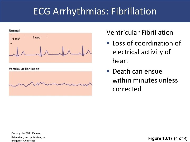 ECG Arrhythmias: Fibrillation Ventricular Fibrillation § Loss of coordination of electrical activity of heart