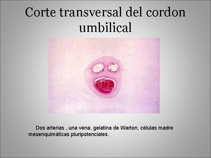 Corte transversal del cordon umbilical Dos arterias , una vena, gelatina de Warton, células