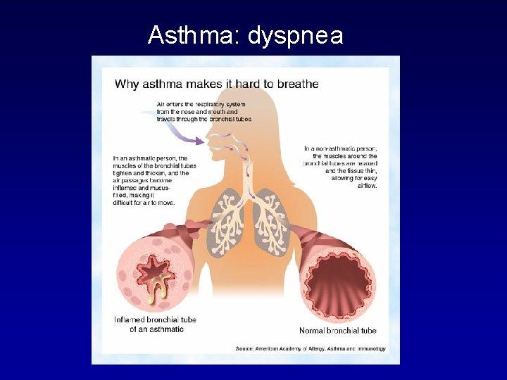 Asthma: dyspnea