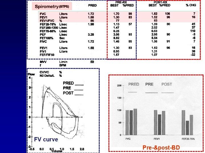 FV curve Pre-&post-BD