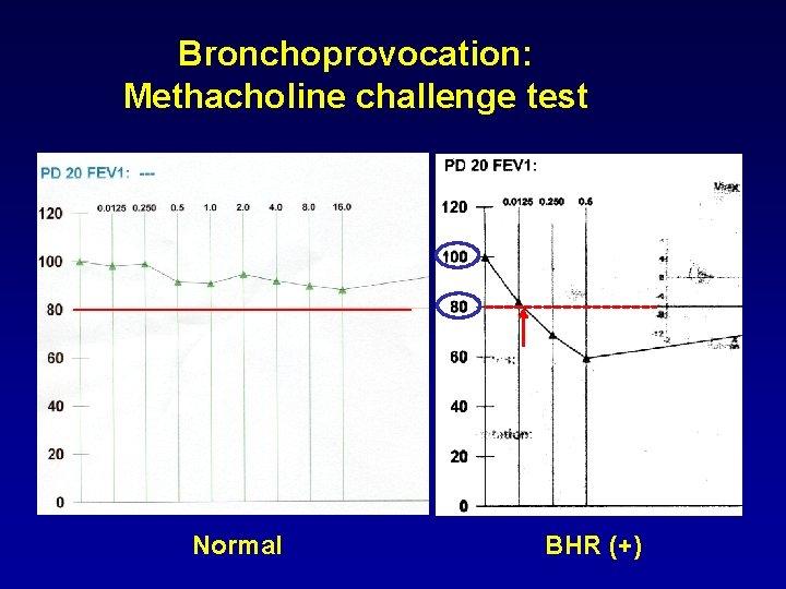 Bronchoprovocation: Methacholine challenge test Normal BHR (+)