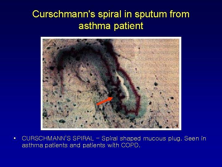 Curschmann's spiral in sputum from asthma patient • CURSCHMANN'S SPIRAL - Spiral shaped mucous