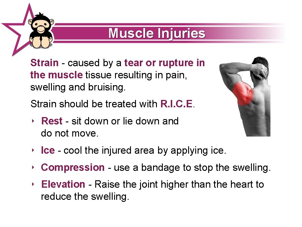 Muscle Injuries Strain - caused by a tear or rupture in the muscle tissue