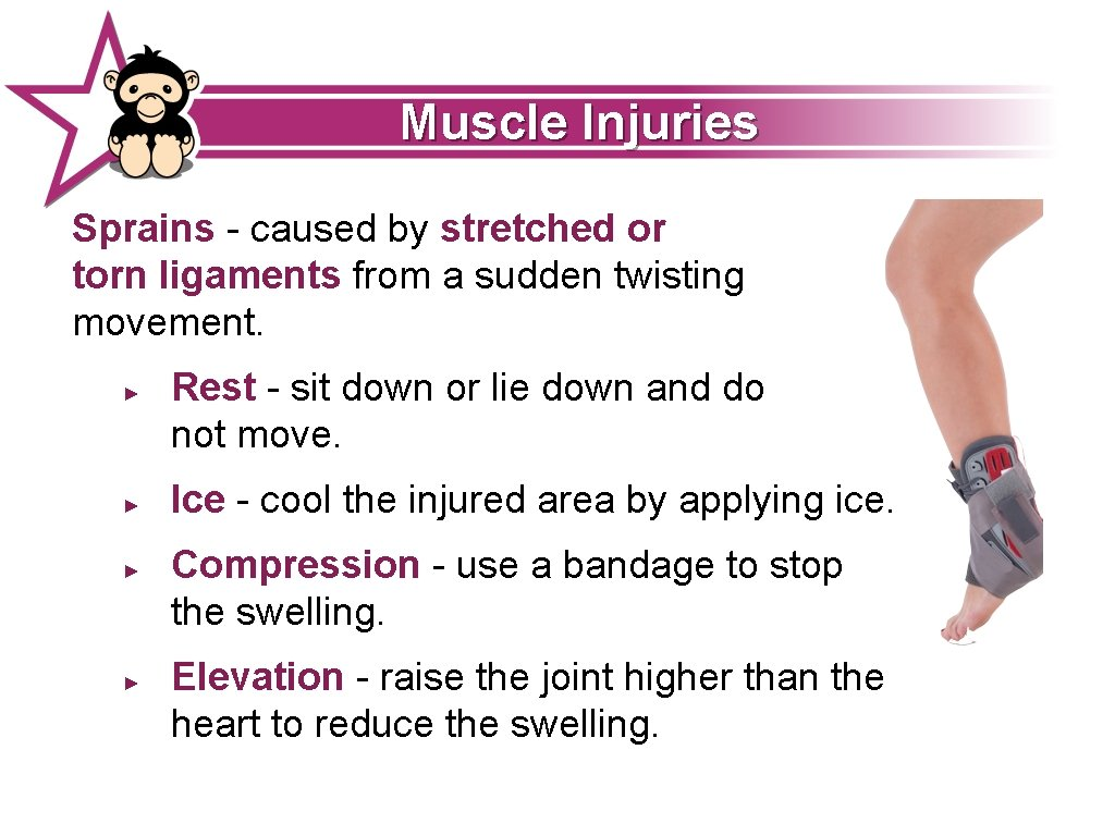Muscle Injuries Sprains - caused by stretched or torn ligaments from a sudden twisting